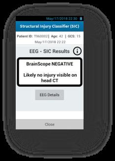 Brainscope negative