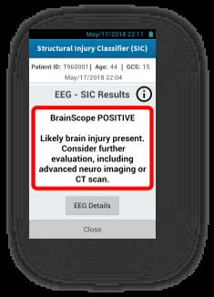Brainscope positive