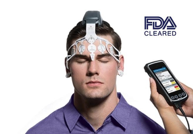 BrainScope Head Injury FDA Cleared Medical Device